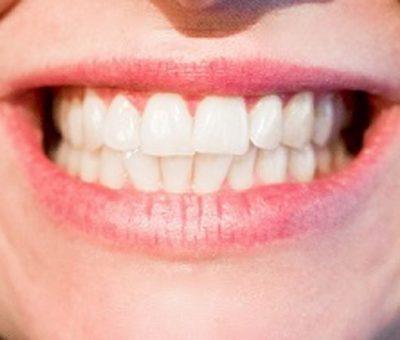 Comment prendre soin de ses dents?